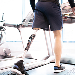 Person with prosthetic leg exercising